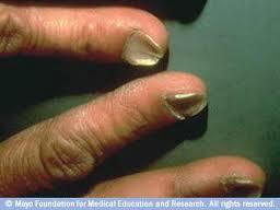 Anemia ‹ buy-toniclife.com B12 Deficiency Nails